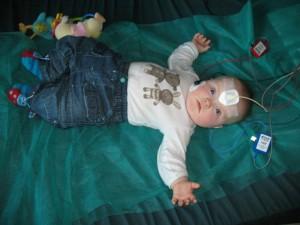 Staszek-fistaszek - zespół Downa - badanie słuchu abr